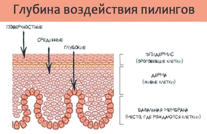 vidy-pilingov